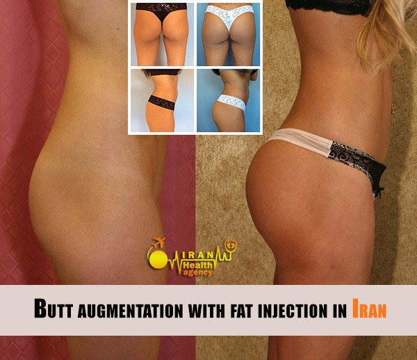 Butt augmentation with fat injection in Iran