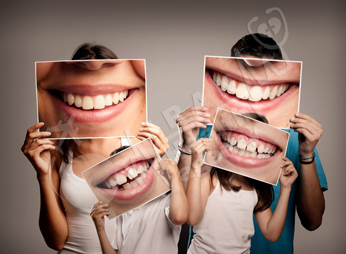 Dental crowns and hollywood smile