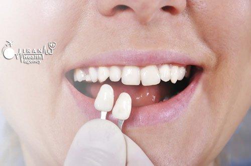 Dental veneers in Iran & dental crowns in Iran