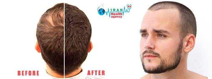 Hair transplant in Iran before after