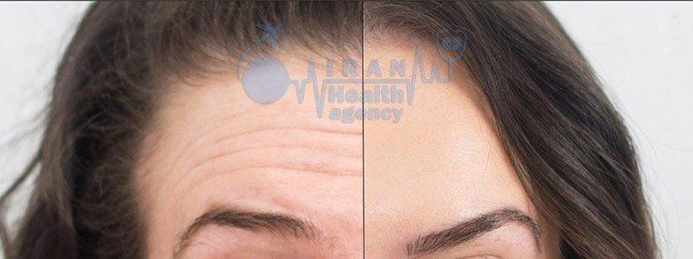 Head Botox