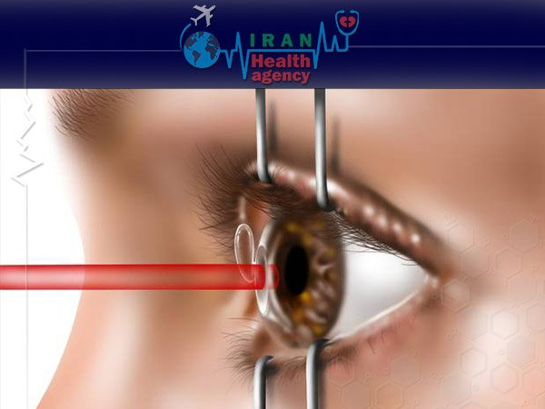 Lasik eye surgery weakens your eyes