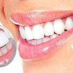 Dental crowns in Iran