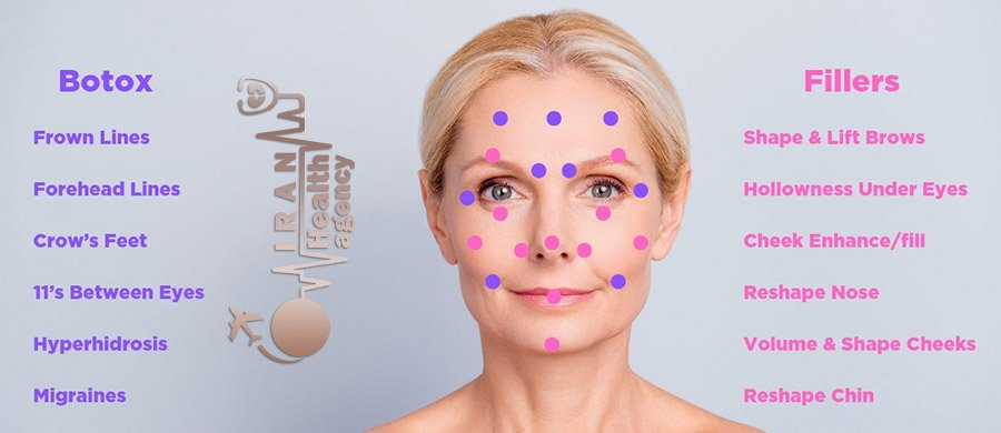 The difference between fillers in Iran and Botox