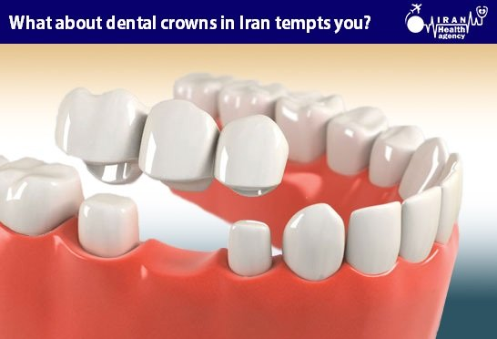 What about dental crowns in Iran tempts you