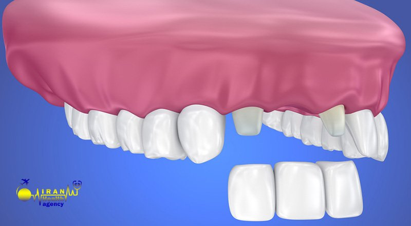 What are the complications of dental crowns in Iran
