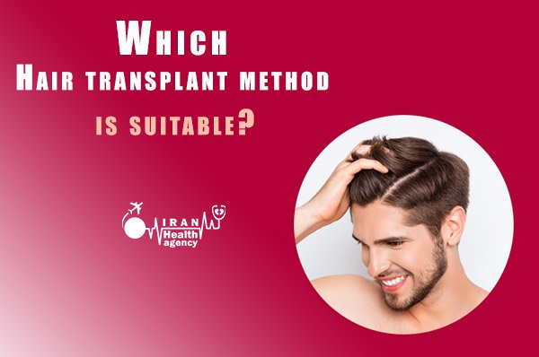 Which Hair transplant method is suitable
