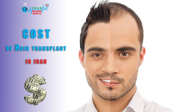 cost of Hair transplant in Iran