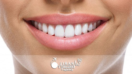 dental veneers in ahvaz