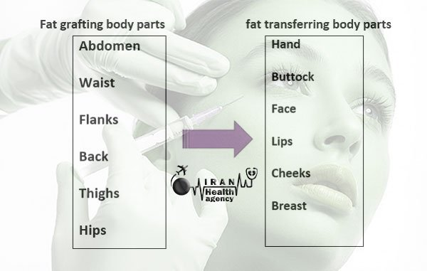 fat transfer in Iran, all necessary information