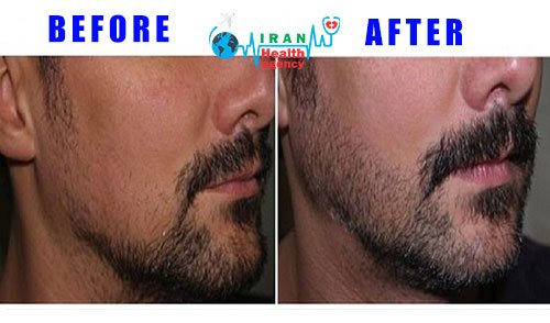 BEFORE-AFTER beard transplant