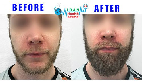 BEFORE and AFTER of beard transplant