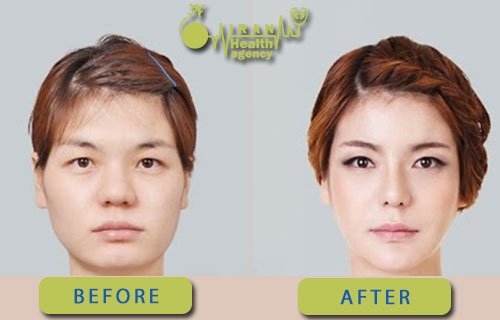 Before and after photos chin reduction surgery in Iran