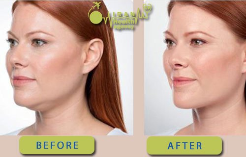 Before and after photos chin reduction surgery