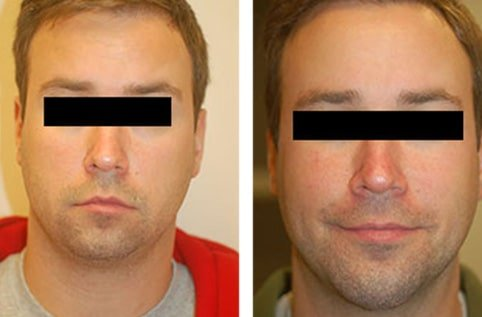 Chin implant asymmetry