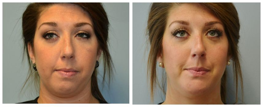 Chin implant for asymmetry