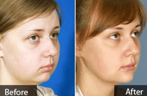 Chin implant for round face