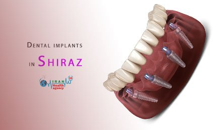 Dental implants in Shiraz
