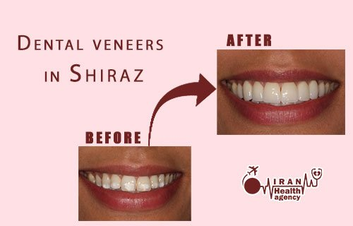 Dental veneers in Shiraz