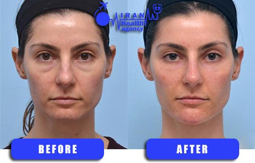Dermal fillers in Iran before and after