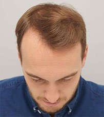 Hair transplant in Shiraz