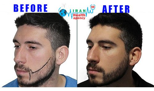 beard transplant BEFORE-AFTER