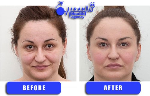 before and after photo of Dermal fillers in Iran