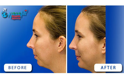 before and after photo of sliding genioplasty in Iran