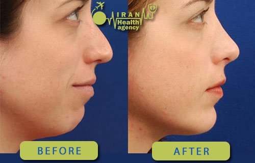 chin implant in Iran Before and after photos