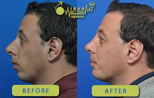 chin implant in Iran before after