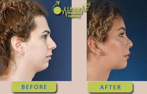 chin reduction surgery in Iran