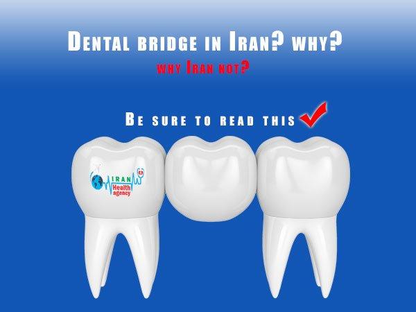dental bridge in Iran
