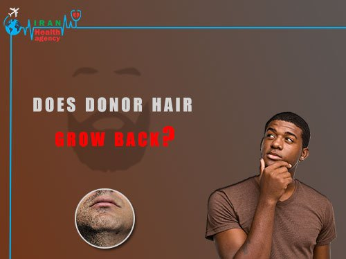 does donor hair grow back