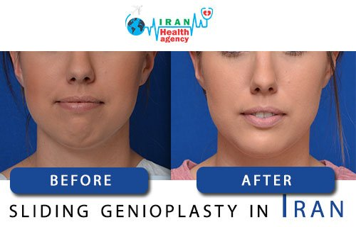 sliding genioplasty in Iran before and after