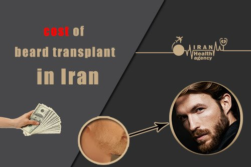 Cost of beard transplant in Iran