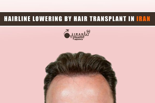 Hairline lowering by hair transplant in Iran