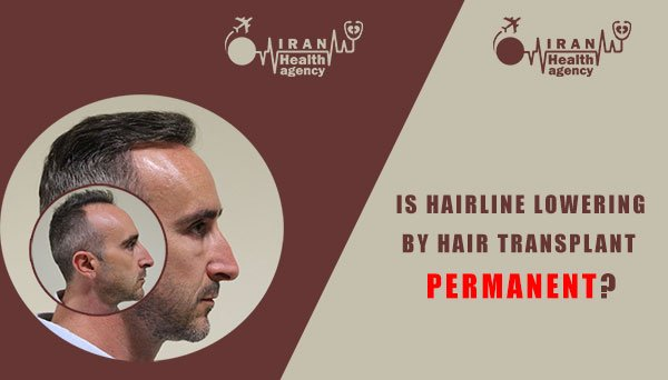 Is hairline lowering by hair transplant permanent