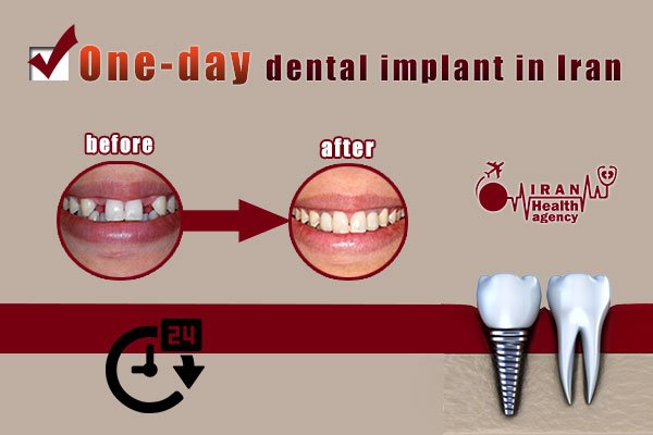 One-day dental implant in Iran