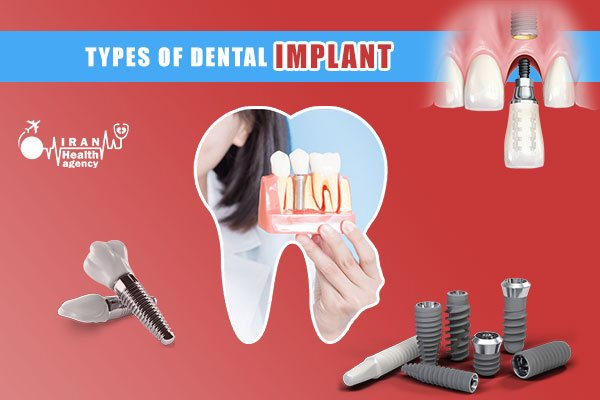 Which type of dental implant is the best