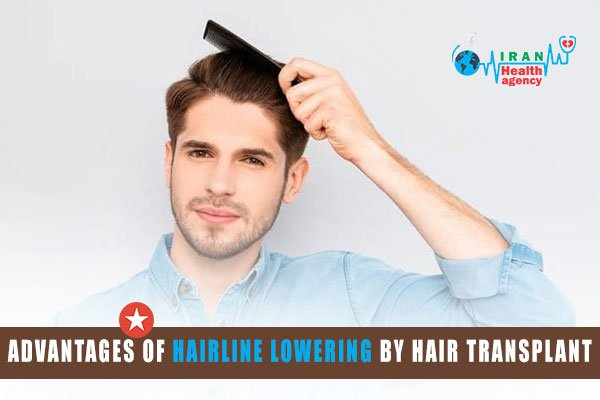 advantages of hairline lowering by hair transplant