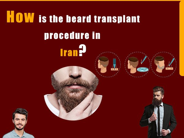 beard transplant procedure in Iran