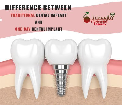 difference between traditional dental implant and one-day dental implant