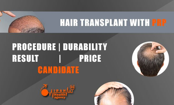 hair transplant without surgery