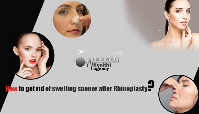 how to get rid of swelling sooner after Rhinoplasty