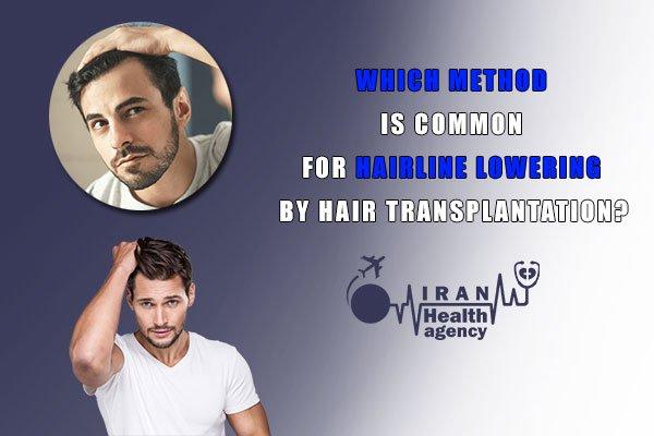 methods of hairline lowering