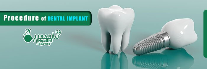 procedure of dental implant in Iran
