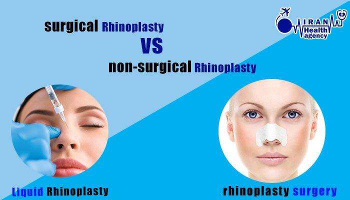 rhinoplasty surgery VS non surgery rhinoplasty