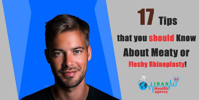 17 Tips that you should Know About Meaty or Fleshy Rhinoplasty!