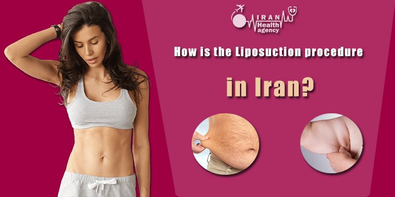 How is the Lipomatic procedure in Iran