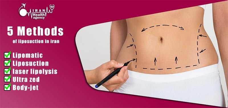 Methods of liposuction or Lipomatic in Iran